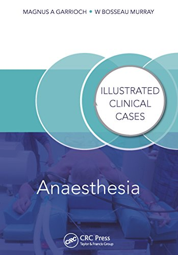 Download Anaesthesia: Illustrated Clinical Cases Pdf