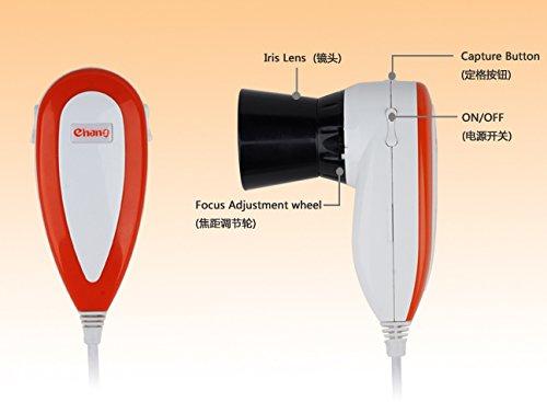 Global Care Market® 5.0 MP-haute résolution CCD USB Iriscope - caméra eye Iriscope avec 30 X auto-iris et analyse des logiciels