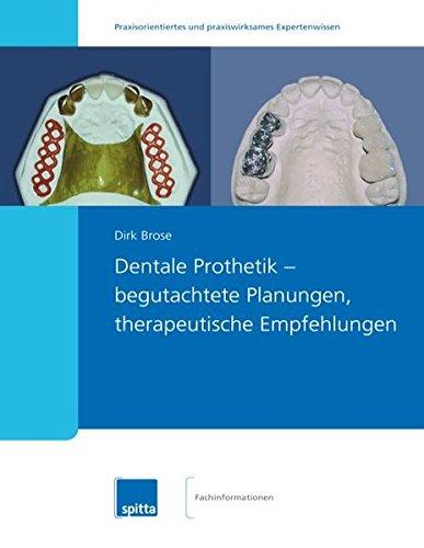 Dentale Prothetik – begutachtete Planungen, therapeutische Empfehlungen