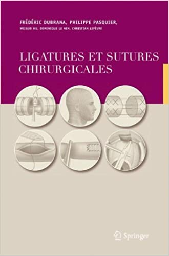 Ligatures et Sutures Chirurgicales: Techniques Chirurgicales (French Edition)