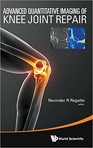 Advanced Quantitative Imaging Of Knee Joint Repair
