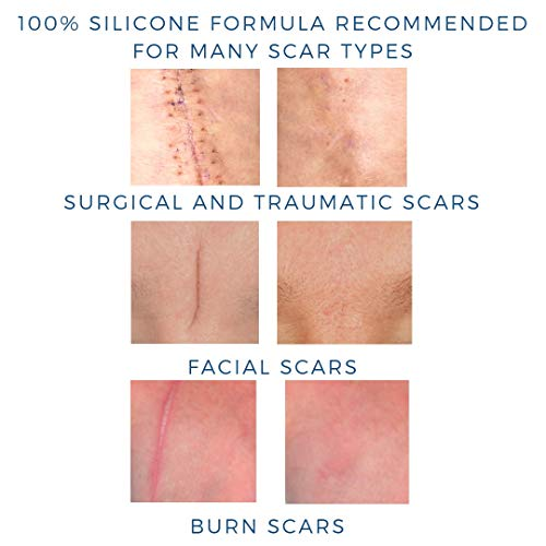 Buy silicone gel for scars