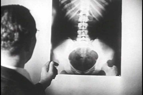 vintage-x-ray-films-dvd-a-video-history-of-medical-radiology-xray-equipment