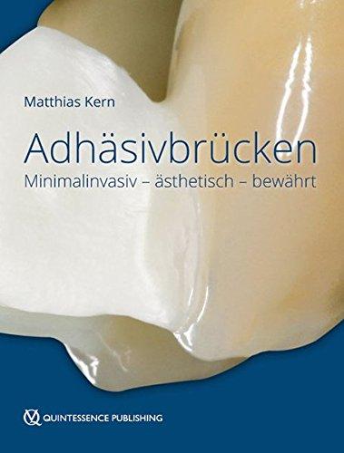 adhsivbrcken-minimalinvasiv-sthetisch-bewhrt