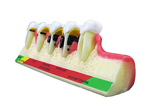 Melleco Dental Periodontal Disease assort Tooth Teeth Typodont Study Teaching Model