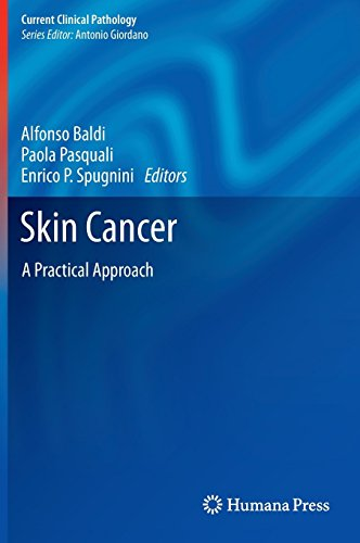 Skin Cancer: A Practical Approach (Current Clinical Pathology) by Alfonso Baldi (Editor), Paola Pasquali (Editor), Enrico P Spugnini (Editor) (21-Aug-2013) Hardcover (Garden Baldo)