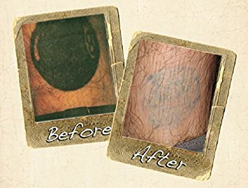 Amazon    Wrecking Balm Tattoo Fade System  Beauty together with  furthermore Homeboy Industries   Tattoo Removal additionally Dr  Numb Australia Official Site   Best Skin Numbing Cream for moreover Dr Numb  Tattoos   Art   eBay as well 25  best ideas about Laser mole removal on Pinterest   Mole likewise Ink Vaporizer Tattoo Removal   Skin Arts in addition Arion Skin Laser   Laser Hair Removal   Beauty Clinic likewise  together with  moreover . on tattoo removal cream vancouver