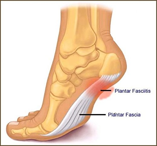 Plantar Fasciitis Arch Support - Alleviate Plantar Fasciitis and Heel Pain, Plantar Fasciitis Therapy Wrap by Alayna (TM) (Image #2)