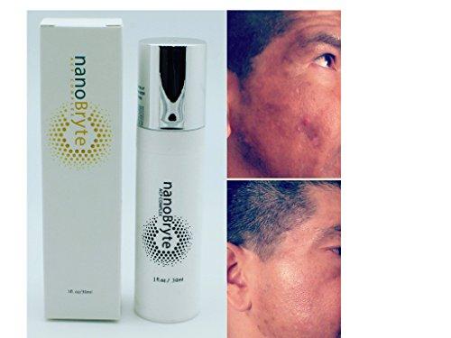 Dark Spots Treatment Skin Care - 6