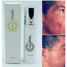 SKIN Lightening, REAL RESULTS, NO FAKE MODELS, Even tone skin with Organic Natural ingredients for hyperpgimentation and Sun Damaged Skin, Dark Spot Corrector.