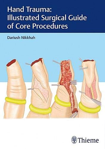 Hand Trauma: Illustrated Surgical Guide of Core Procedures by Thieme