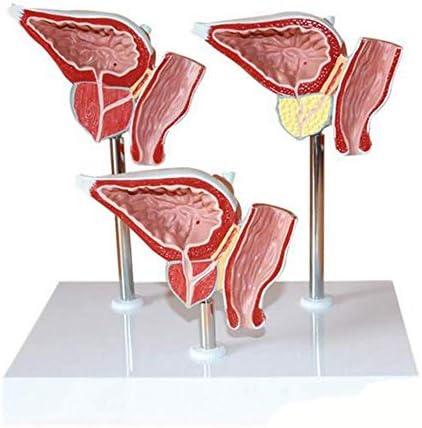 ヒト前立腺病変モデル、3つの状態、正常、良性病変、およびがんの泌尿器系解剖学モデルを表示
