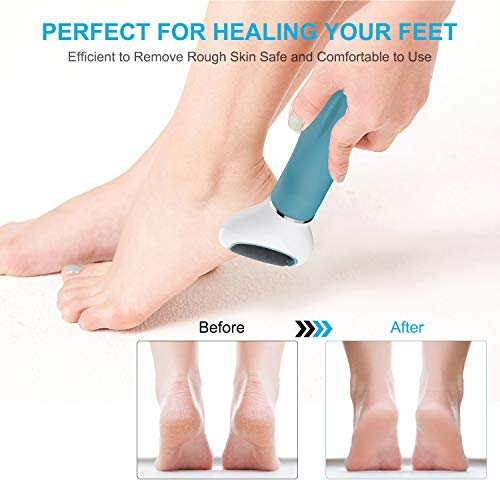 Electric Feet Callus Remover,Rechargeable Pedicure Foot File Callus Remover,3 Speed Callous Remover for Feet with 4 Coarse Roller Heads,Feet Care Perfect for Dead,Hard Cracked Dry Skin Ideal