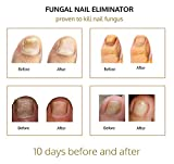 Nail & Toenail Fungus Treatment - Fungal Nail