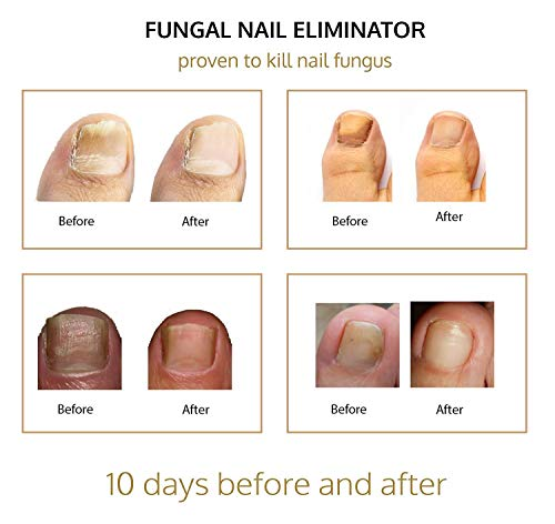 Gold Mountain Beauty Fungal Nail Eliminator with Tolnaftate and Puredia SeaBerry, Foot Therapy Antifungal Treatment