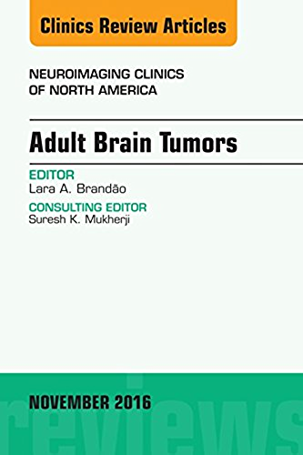 Télécharger Lire en Ligne Adult Brain Tumors, An Issue of Neuroimaging Clinics of North America, E Book (The Clinics: Radiology) (English Edition) 