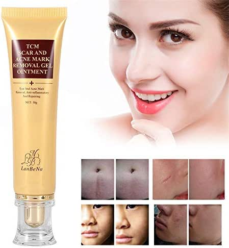 Acne Scar Removal Cream Skin Repair Face Cream Burns Cuts Operation Stretch Mark Remover Acne Scar Treatment for face & the whole body 100% Proven Safe, Effective.