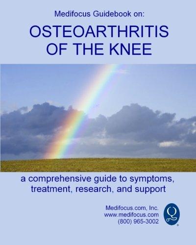 Medifocus Guidebook on: Osteoarthritis of the Knee