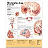 Understanding Stroke, Anatomical Chart Company Staff, 1587799871