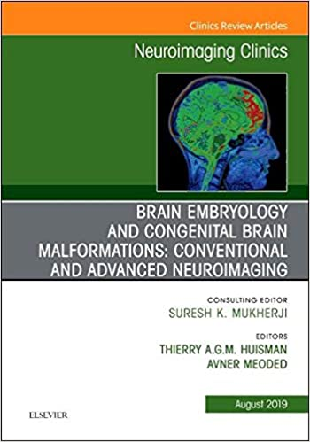 Brain Embryology and the Cause of Congenital Malformations
