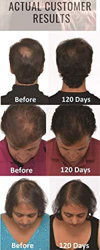 Igrow Laser Hair Growth Helmet Restoration Amp Regrowth