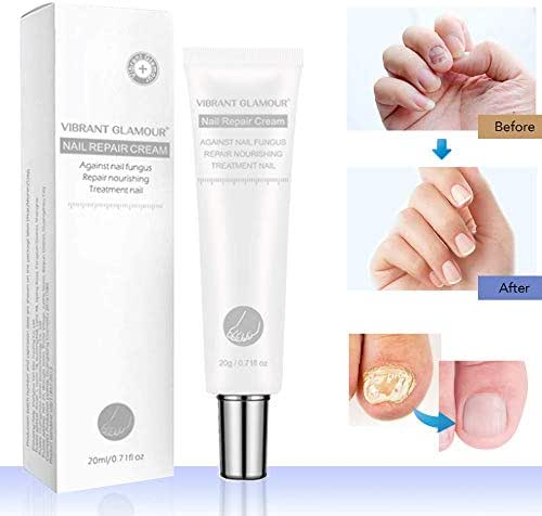 Toenail Fungus Treatment Cream, Nail Fungus Stop, Fingernail Fungus, Fungi Nail Fungus Remover, Maximum Strength Antifungal Cream