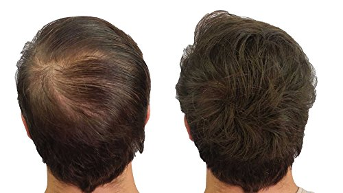 CROWN Hair Fibers - Best Keratin Hair Fibers Instantly ...