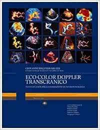 Eco color doppler transcranico. Con DVD (Medicina)