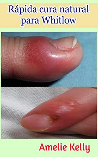 Complicaciones del herpes simple tipo 1
