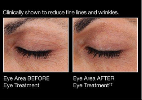 Avon Anew Genics Eye Treatment  50 ounce - Buy Online in Oman