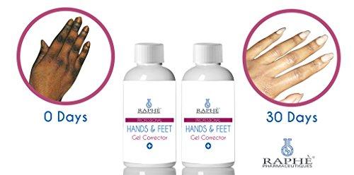 Hand Bleaching Cream - 8