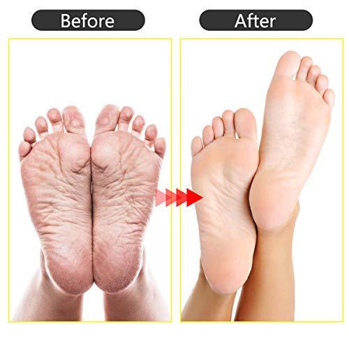 20 PCS Pedicure Kit, Foot Rasp Foot File Callus Remover Kit, Professional Stainless Steel Foot Rasp Peel Scrubber Callus Shaver Scraper Tool Manicure and Nail Toenail Clipper Foot Care Set for Women