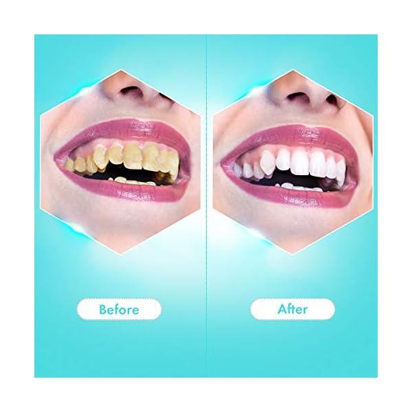 Detartreur Dentaire, iFanze Kit Detartrage Dentaire, Anti Tartre Dentaire aves 2 Tête de Brosse à Dents, 3 Modes…