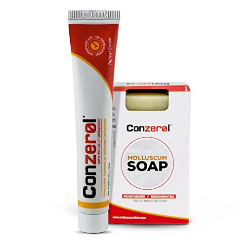 Stop Molluscum Today. Conzerol 2 Step Treatment for Molluscum Contagiosum. Painfree and Natural ... (Best Treatment For Molluscum)