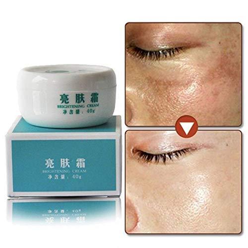 Whitening Skin Bleaching Cream Remove Dark Skin Spots Treatment Care by ()