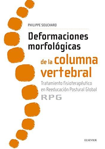 Deformaciones Morfológicas De La Columna Vertebral Tratamiento