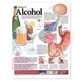 Dangers of Alcohol Anatomical Chart, Anatomical Chart Company Staff, 1587792281