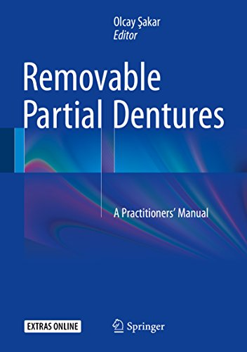 removable-partial-dentures-a-practitioners-manual
