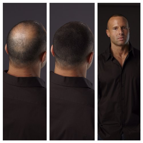 Caboki hair loss concealer dubai