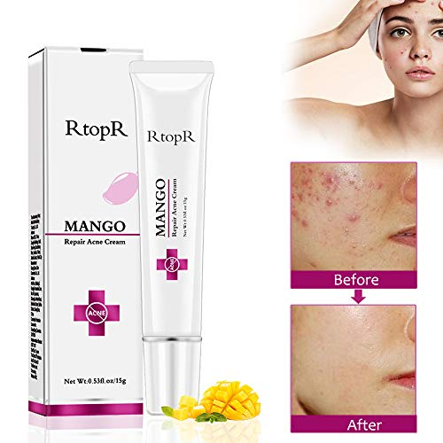 Acne Scar Remover Cream, Acne Remover Cream, Face Acne Cream Acne Scar treatment Anti Acne Cleaning Pimple quickly Face Cream Acne Treatment Skin Care Facial Care Tools