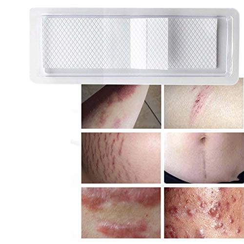 Silicone Scar Treatment Sheets Scar Tape Silicone Strips Patches for Scars by Lovelysunshiny (Image #3)