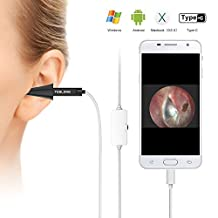 Digital Otoscope, Teslong USB Ear Scope Otology Inspection Camera with 6 LED Lights for Samsung LG Sony Android Mac and PC(Black)