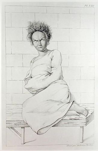 1st Art Gallery Woman In A Straitjacket, Illustration For Des Maladies Mental... (Women Straitjacket)