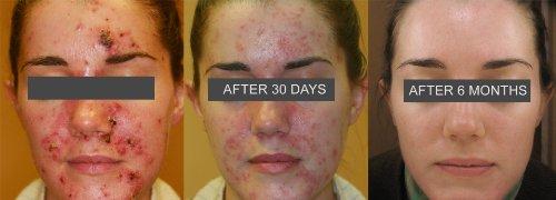 De La Cruz Sulfur Ointment Acne Medication 2 6oz Buy