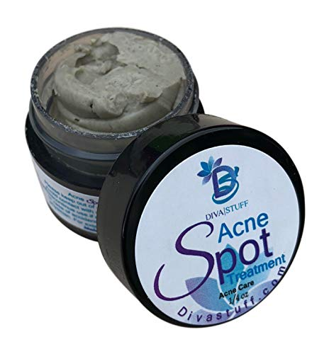 The Best Spot Acne Treatment, Clay Based, By Diva Stuff