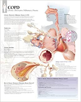 COPD (Chronic Obstructive Pulmonary Disease) Paper Poster: Amazon.co.uk:  Scientific Publishing: 9781930633346: Books