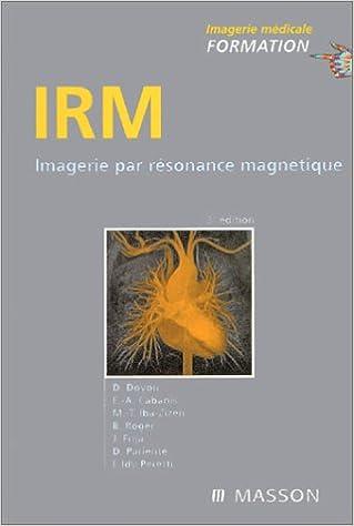 Lire en ligne IRM : Imagerie par résonance magnétique pdf epub