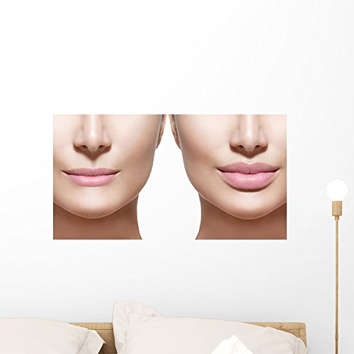 Wallmonkeys FOT-80661881-24 WM43438 Filler Injections Lips Closeup Over White Peel and Stick Wall Decals (24 in W x 13 in H), Medium