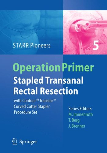 Stapled Transanal Rectal Resection: with Contour Transtar Curved Cutter Spapler Procedure Set (Operation Primers)