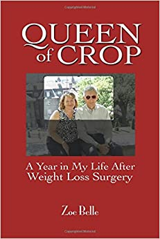 Queen of Crop: A Year in My Life After Weight Loss Surgery